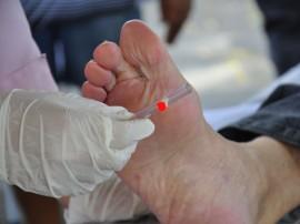 ses dia mundial contra diabetes foto jose lins 71 270x202 -  Avaliação e testes médicos marcam ações do Governo no Dia do Diabetes